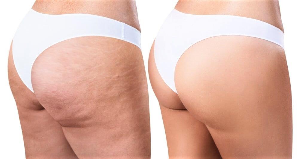 beneficios del tejocote para la piel