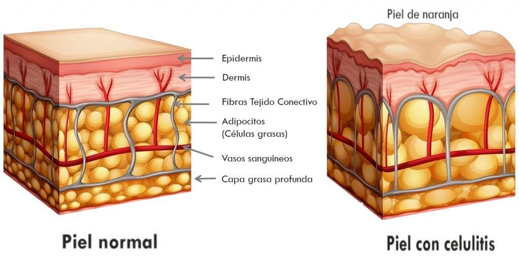 tejido adiposo alipotec quema grasa